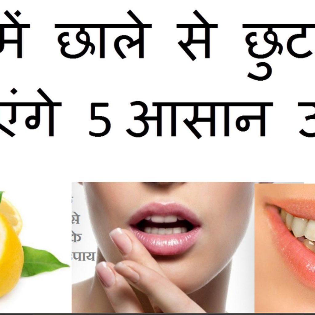 मुंह में छाले का इलाज