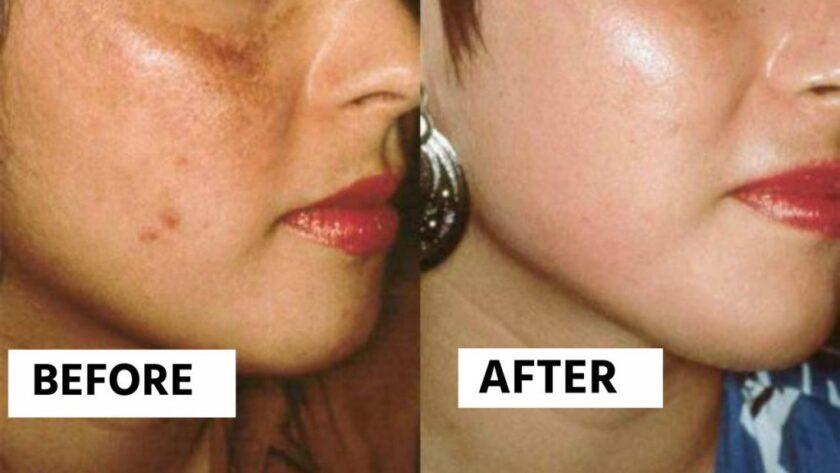 चेहरे की झाइयों का इलाज