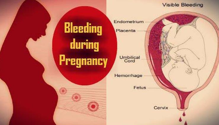 गर्भावस्था में खून का आना